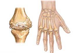 Die ersten Anzeichen einer Arthritis