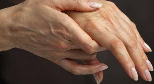 Die Symptome der rheumatoiden Arthritis beginnen oft an den Fingern