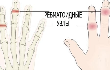 Was bei Hand- und Fingerarthrose hilft