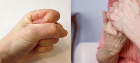 Wie erkenne ich rheumatoide Arthritis