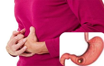 Magenkrebs: erste Symptome und Manifestationen, Behandlung..