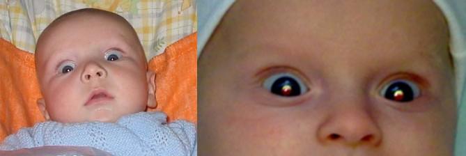 Baby Verdreht Augen